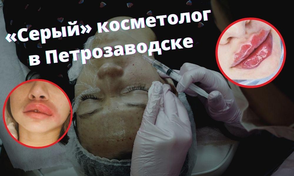емельян брауде, косметолог-мясник, косметолог из петрозаводска, косметолог карелии, ужасный косметолог