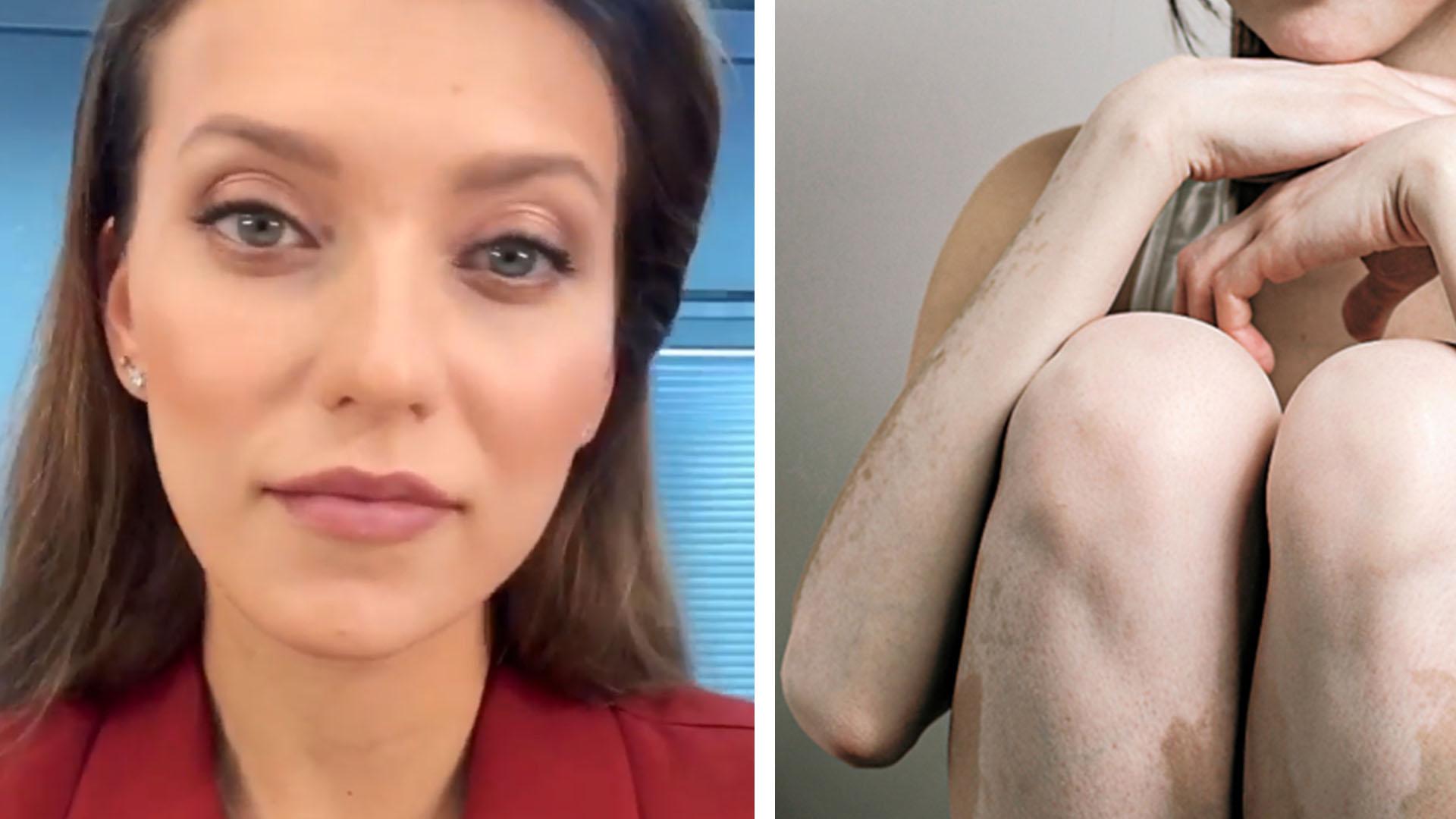 Коллаж: фото Тодоренко, и фото больного витилиго. видны белые пятна на коже ног и рук