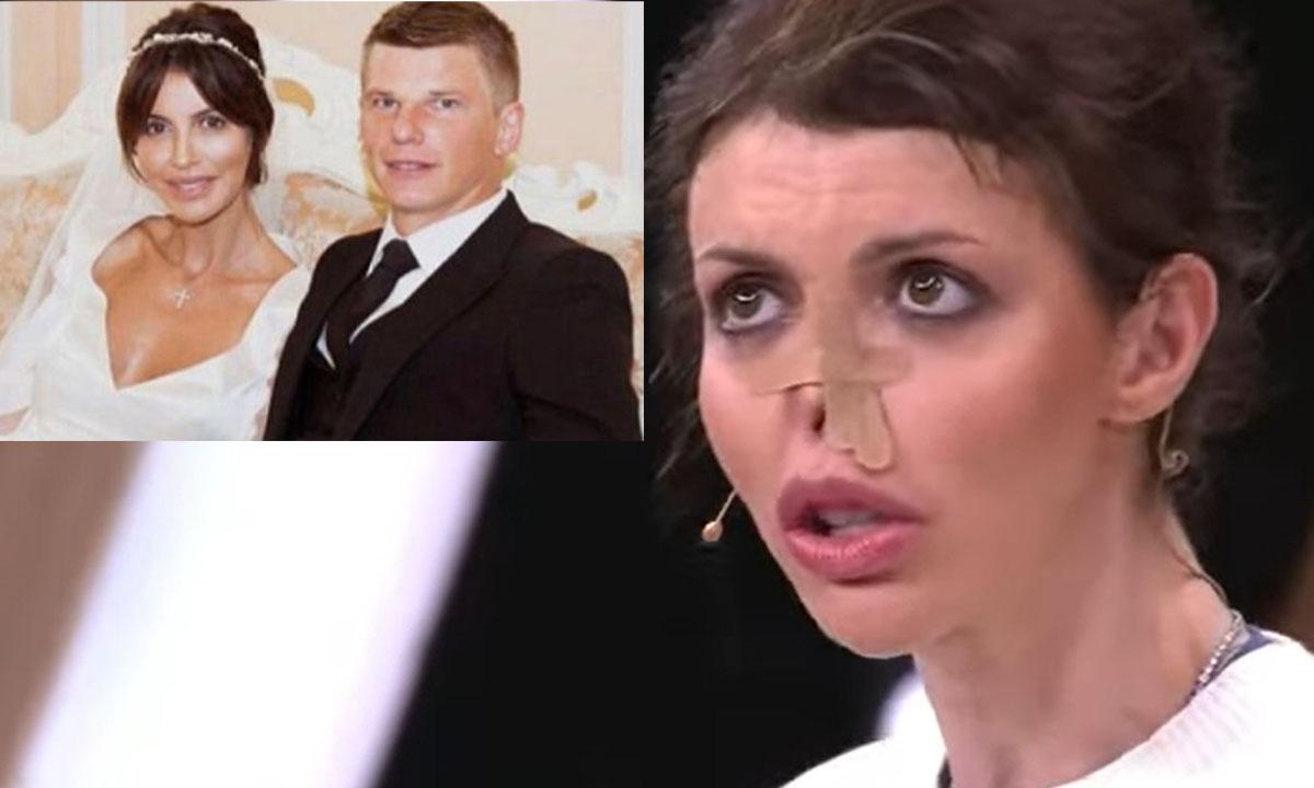 Состояние тяжелобольной экс-жены Аршавина резко ухудшилось: ее вид всех шокировал